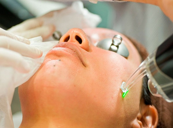 CO2 лазер агрессивно воздействует на кожу