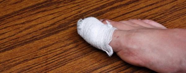 После процедуры на палец накладывается повязка