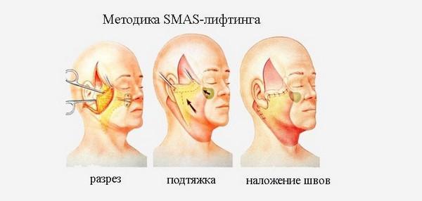 Классический SMAS-лифтинг