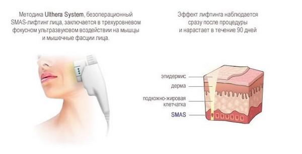 СМАС-лифтинг воздействует на глубокие слои