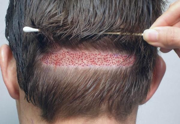 Время от изъятия фолликула до внедрения в ткань кожи не должно превышать 20 секунд