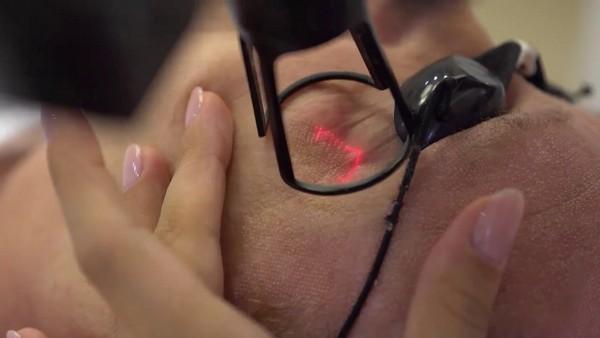 Более эффективным в избавлении от пигментных пятен считается фракционный лазер