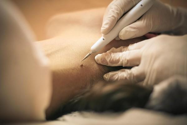 После такой процедуры рубцов на коже не остается