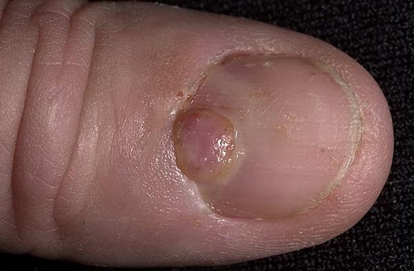Возможно возникновение пиогенной гранулемы, если не лечить такую проблему