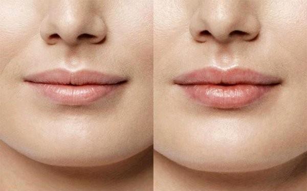 Данный препарат помогает увеличить губы