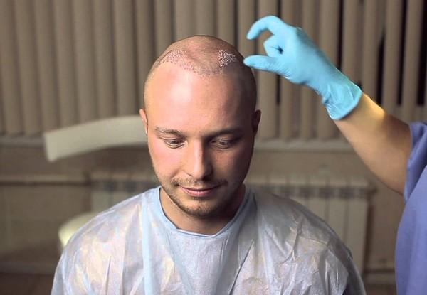 Как и при любой другой процедуре, после трансплантации возможны осложнения
