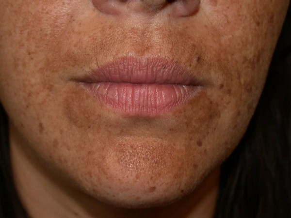 Можно избавиться от сильной пигментации кожи