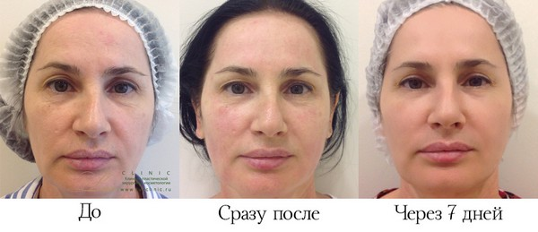 Проводились сравнения фотографий «до и после»