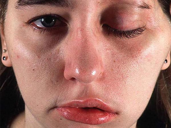 Иногда после процедуры возникают побочные эффекты, но это редкость