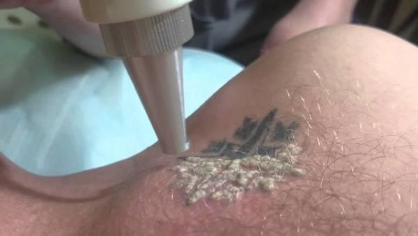 Удаление татуировки с помощью лазера – процесс небыстрый