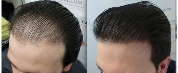 Фото до и после трансплантации волос методом FUE