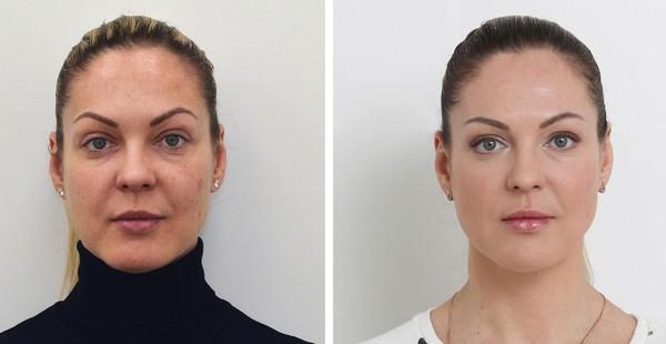 Можно значительно улучшить состояние кожи