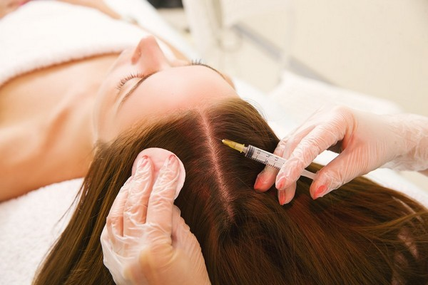 Плазмолифтинг улучшает ситуацию с выпадением волос