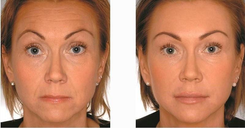 Фото до и после уколов ботокса №1