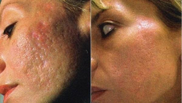 Рубцы могут возникнуть из-за сильного давления на кожу, но это случается нечасто