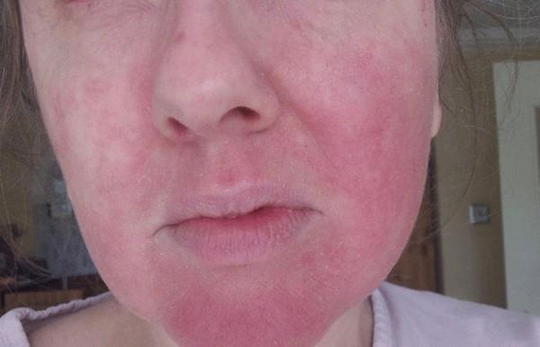 В ходе данной процедуры возможно проявление аллергии