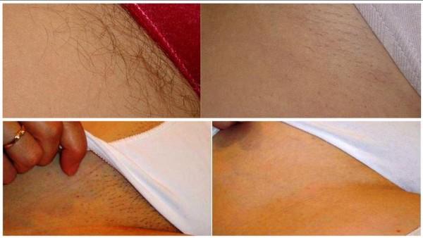 Фото до и после курса процедур лазерной эпиляции бикини №1