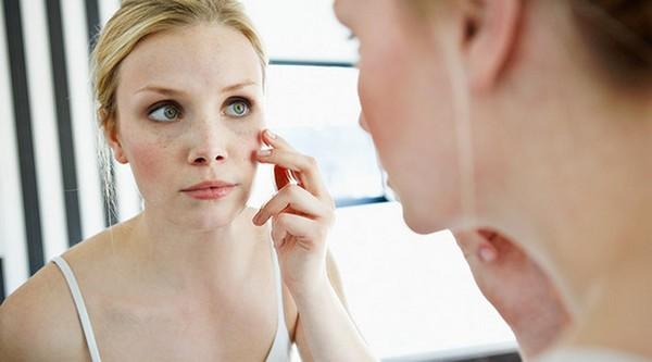 Самостоятельно снимать чешуйки кожи нельзя