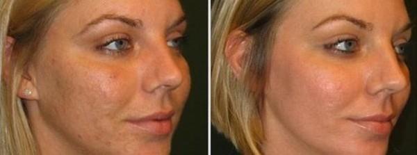 Пациентки отмечают, что хоть такой пилинг и достаточно агрессивно воздействует на кожу, эффект от него прекрасный