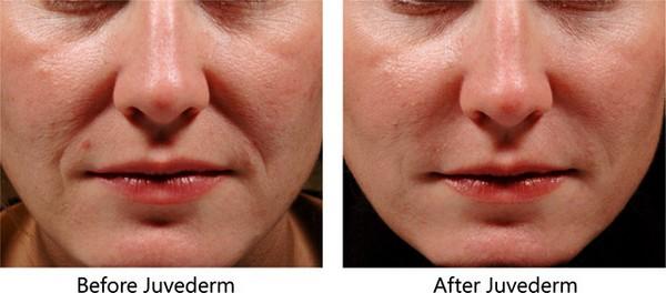 «Ювидерм» обеспечивает плавные очертания губ