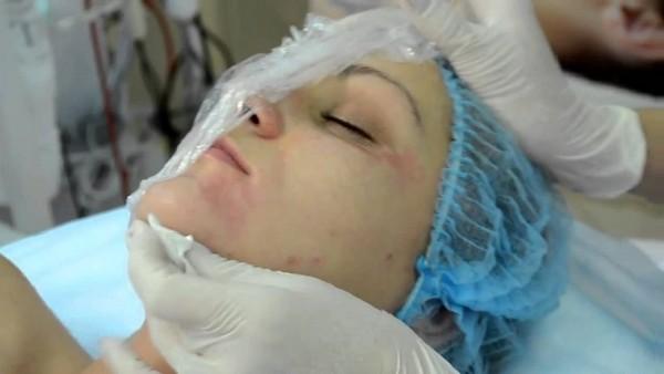После процедуры могут быть слабые побочные эффекты, которые сами пройдут за несколько дней