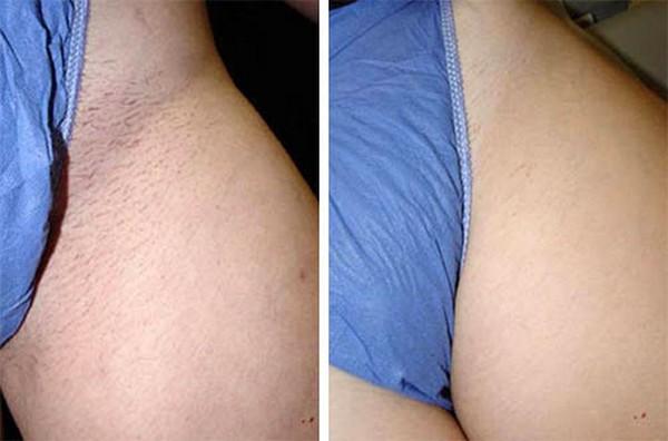 Фото до и после курса процедур лазерной эпиляции бикини №2