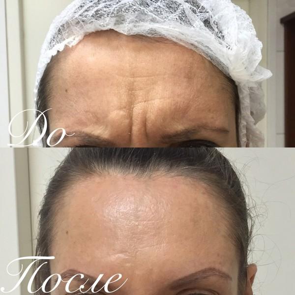 Фото до и после использования средства Ботокс №1