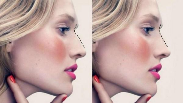 Фото до и после безоперационной ринопластики с помощью филлеров №1
