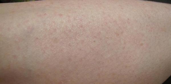 После процедуры на коже может наблюдаться легкое покраснение