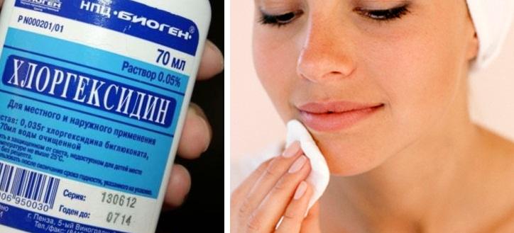 До заживления мягких тканей нужно протирать кожу раствором хлоргексидина