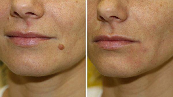 Фото до и после удаления бородавки с помощью электрокоагуляции