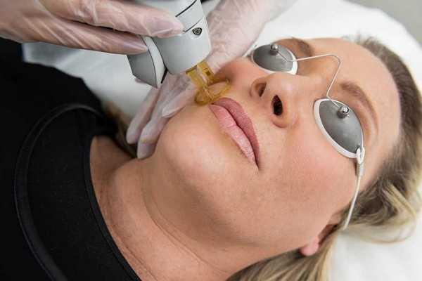 Стоимость процедуры может отличаться в зависимости от того, какой вид лазера используется