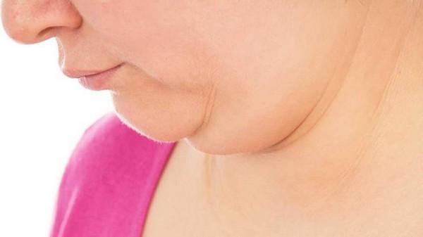 Неправильное положение тела приводит к накоплению жира под подбородком