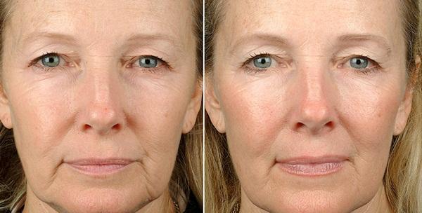 Фото до и после процедуры термажа №1