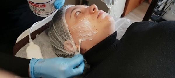 Перед введением средства кожу обезболивают