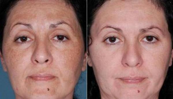 Фруктовые кислоты помогают избавляться от пигментации кожи