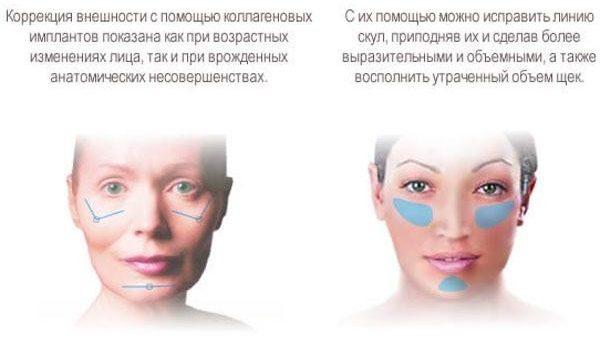 Можно использовать имплантаты для коррекции овала лица