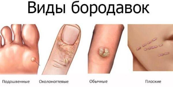 Конкретные вирусы провоцируют определенный вид бородавок