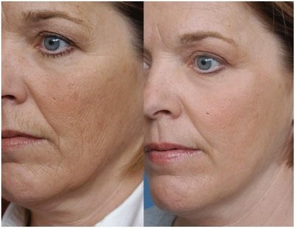 Плазмолифтинг решает разные проблемы с кожей