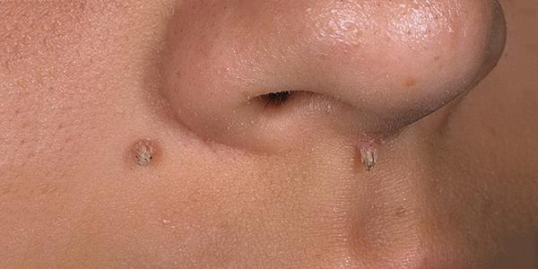 На лице удаление новообразования должно проводиться с большой осторожностью