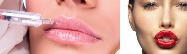 Для коррекции губ проводят также липофилинг