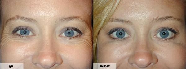 Препараты помогут улучшить внешность