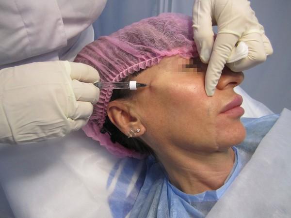 Обычно такую процедуру проводят людям в возрасте от 35 до 65 лет