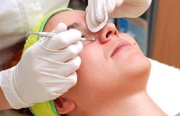 Важно, чтобы процедуру проводил специалист – в ином случае впоследствии могут остаться шрамы, рубцы