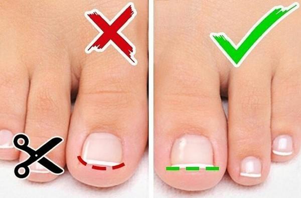 Важно правильно стричь ногти на ногах