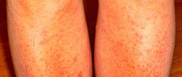 Диодную эпиляцию нельзя проводить при наличии вросших волосков или раздражении кожи