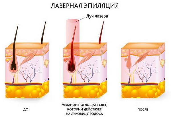 Что происходит с волосом до и после воздействия лазера