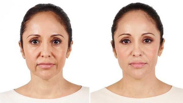 «Радиесс» многое меняет во внешности