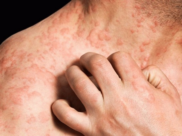 Возможно появление аллергии, интоксикации