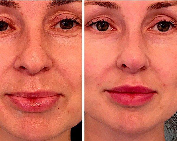 Можно исправить некоторые дефекты носа